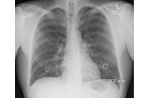 ➡️ Lungenkrebs ⭐️ Alles zu Ursachen, Symptome und Therapie