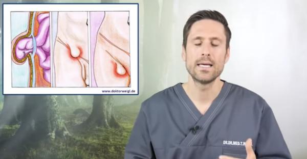 Leistenbruch: Warnsignale und Symptome erkennen